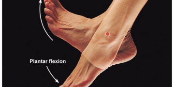 Is there a link between Plantar Fasciitis and Morton's Neuroma?